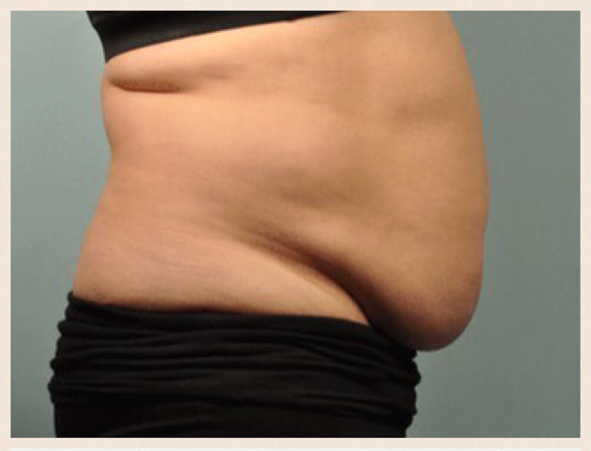 What You Need To Know About SculpSure VS Coolsculpt